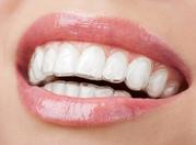Smilelign - Get straighten teeth