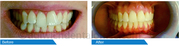 Get an Enhanced Smile at Dulwich Dental Office