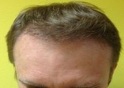 Save Money With Hair Transplant Surgery UK