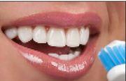 Good Dental Implants in Sutton