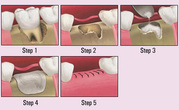 Are You a Perfect Candidate for Bone Grafting