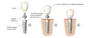 Dental Implants an Valuable Investment