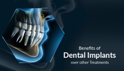 Don't Miss a Moment… Get a Dental Implant Today...