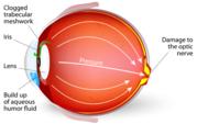 Glaucoma Referral Refinement