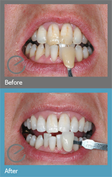 Tooth Whitening SuttonNear To Me - Dr. Suril Amin